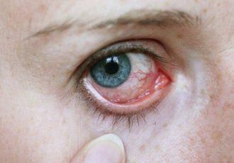 Tipps bei Augenentzündung
